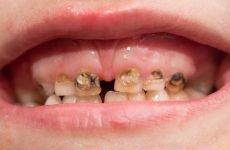 Гнилі зуби: причини, симптоми і способи ефективного лікування