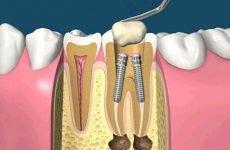 Після установки штифта болить зуб: причини і методи лікування