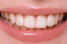 Пломбування зубів: різновиди пломб та особливості установки