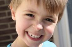 Є нерви в молочних зубах: видаляють чи нервові закінчення у дітей?