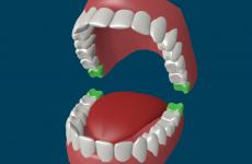 Карієс зуба мудрості: лікувати або видаляти?