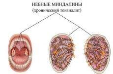 Хронічний компенсований тонзиліт