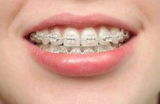 Як вирівняти зуби в домашніх умовах: виправлення прикусу