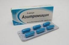 Азитроміцин для лікування тонзиліту