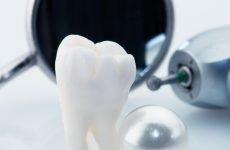Болить зуб з миш'яком: причини і що при цьому робити?