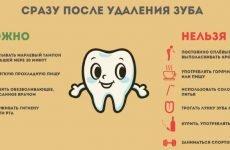 Можна палити після видалення зуба: відгуки стоматологів