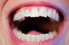 До скількох років ростуть зуби у людини: терміни появи