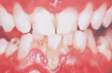 Аномалії розвитку зубів: причини порушень, симптоми та діагностика