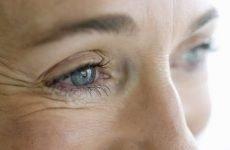 Маски з ефектом ботокса від зморшок навколо очей в домашніх умовах, відгуки