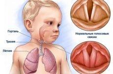 Ларингіт у немовлят і дітей старшого віку