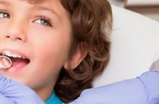 Захворювання порожнини рота у дітей: причини появи та методи лікування