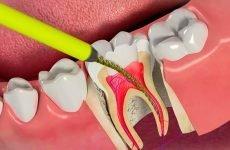 Чому болить мертвий зуб: причини і методи вирішення проблеми