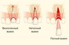 Вивих зуба: причини, симптоми і методи лікування