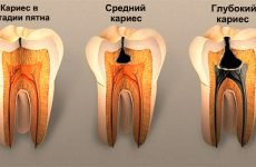 Глибокий карієс: причини, симптоми та етапи лікування