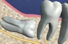 Зуб мудрості: симптоми росту, лікування і видалення