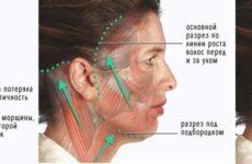 Реабілітація після кругової підтяжки обличчя — реальні відгуки пацієнток