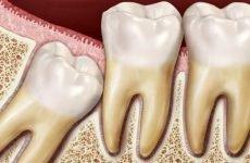Що робити, якщо зуб мудрості росте в зуб: видалення лежачого зуба