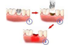 Альвеоліт після видалення зуба: причини, симптоми і лікування сухої лунки