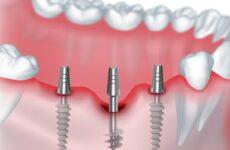 Базальна імплантація зубів: особливості проведення