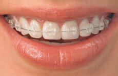 Скільки носять брекети, щоб вирівняти зуби: термін носіння у дорослих і дітей