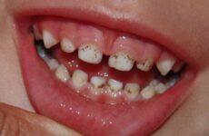 Чорний наліт на зубах у дітей: причини появи та методи лікування