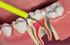 Що таке чищення каналів зуба – підготовка та особливості проведення процедури