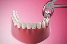 Як зупинити кров після видалення зуба: ефективні способи