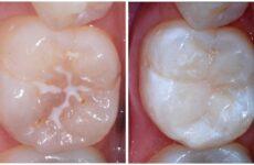 Що таке герметизація зубів у дітей: особливості проведення процедури
