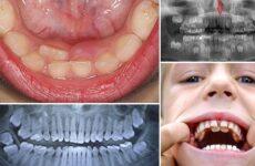 Сверхкомплектные зуби або гіпердонтія – причини виникнення і лікування