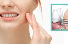 Як зняти чутливість зубів в домашніх умовах: основні способи