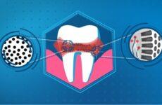 Що таке підвищена чутливість зубів: причини виникнення