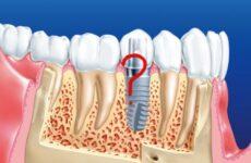 Рекомендації після імплантації зубів верхньої і нижньої щелепи
