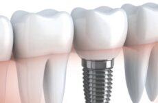Зубні імпланти: протипоказання, показання для установки