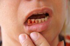 Чому кровоточать ясна: причини виникнення та методи лікування