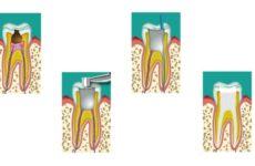 Обтурація кореневих каналів: методика проведення процедури