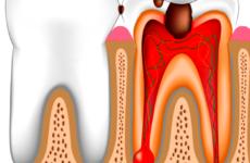 Оголений зубний нерв: методи усунення болю в домашніх умовах