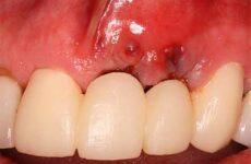Видалення імпланта зуба: чи боляче це? Наслідки та відгуки