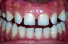 Рідкі зуби: небезпека такої аномалії і методи її лікування