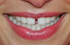 Що означає щілина між зубами: причини виникнення та способи корекції
