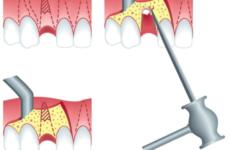 Як відбувається видалення кореня зуба: особливості та методи проведення операції