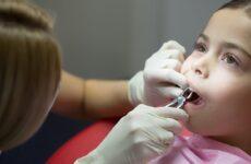 Видалення молочних зубів у дітей: показання та протипоказання до проведення процедури