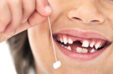 У дитини випав молочний зуб, а новий не зростає: причини і що робити?