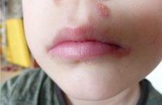 Болячки на губах у дитини: причини, симптоми і методи лікування