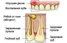 Гнійний пульпіт: причини, симптоми і методи лікування