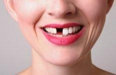 Випадання зубів: причини і що при цьому робити?
