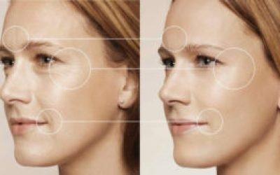 Плюси і мінуси ботокса навколо очей — наслідки та відгуки