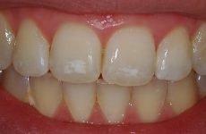 Білі плями на зубах у дорослих: причини появи та правила лікування