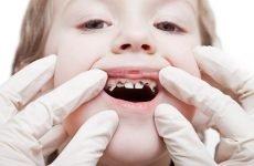 Чому кришаться зуби у дитини: причини і методи лікування