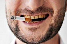 Наліт на зубах після куріння: найбільш ефективні методи відбілювання