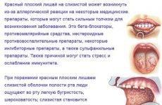 Червоний плоский лишай в порожнині рота: причини, діагностика та лікування